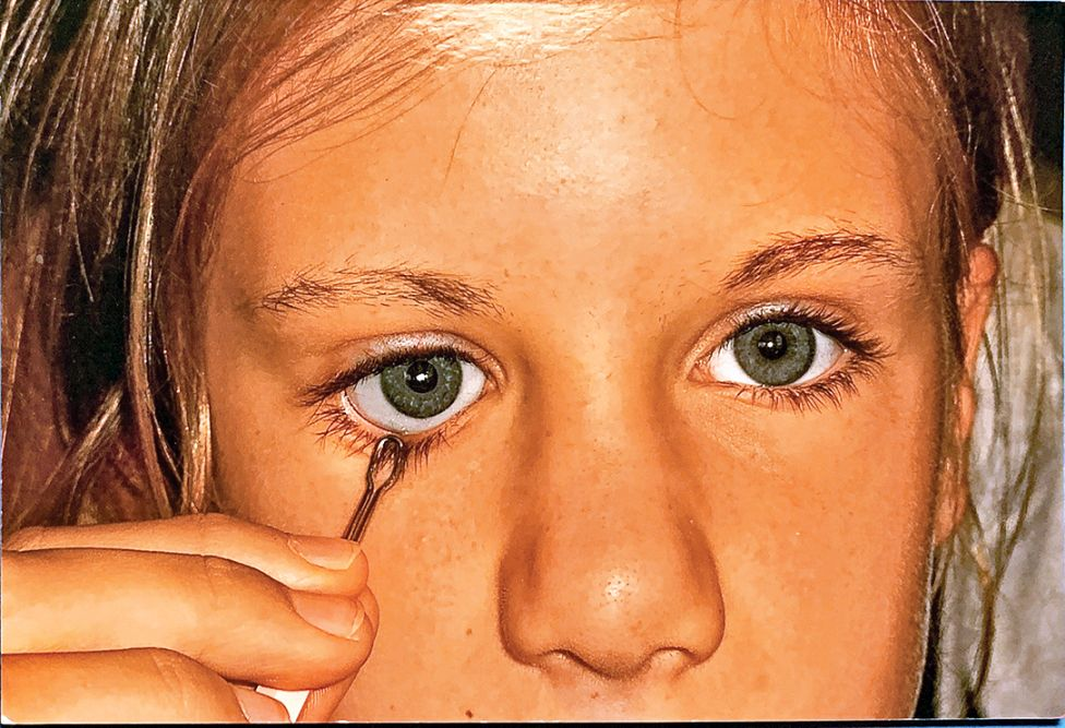 Aussehen blindes auge Blindes Auge